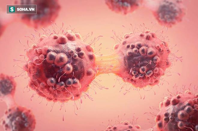 Bệnh ung thư tưởng chỉ phụ nữ mắc nhưng lại rất nguy hiểm với nam giới: 6 sự thật cần biết - Ảnh 1.
