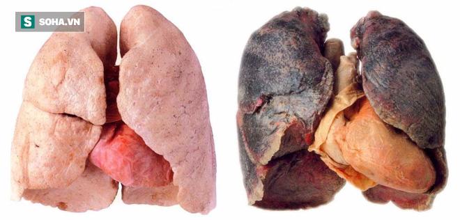 Ung thư phổi có tỷ lệ tử vong rất cao: 4 nhóm người cần đặc biệt chú ý đến việc khám phổi - Ảnh 2.