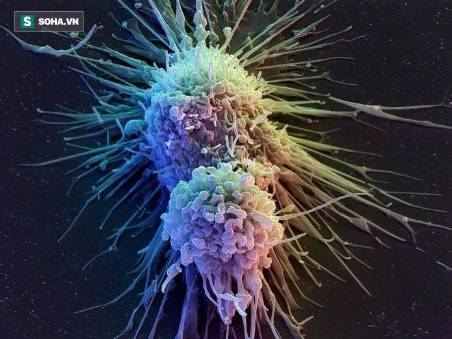 Sự thật về những thực phẩm gây ung thư kinh hoàng: Ai cũng nên biết để ăn cho đúng - Ảnh 1.