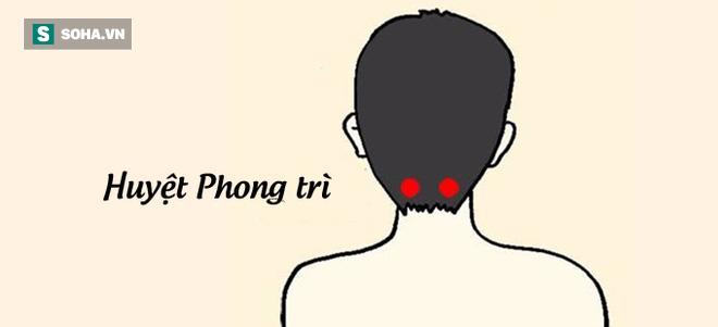 Cột sống cổ tổn thương là nguyên nhân gây nhiều bệnh: Đừng chủ quan khi chỉ đau mỏi vai gáy - Ảnh 3.