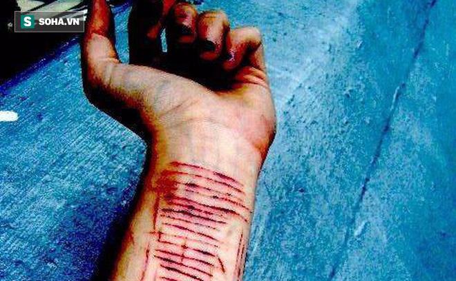 Nữ sinh nhập viện Bạch Mai vì dùng dao cắt da thịt: Chuyên gia báo động, cha mẹ đừng thờ ơ - Ảnh 2.