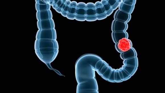 6 nhầm lẫn tai hại quý ông nào cũng mắc phải trong việc chẩn đoán ung thư - Ảnh 3.