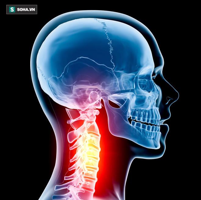 Cột sống cổ tổn thương là nguyên nhân gây nhiều bệnh: Đừng chủ quan khi chỉ đau mỏi vai gáy - Ảnh 1.