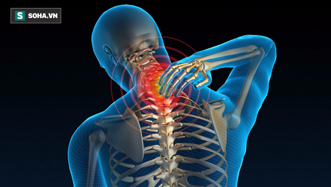 Cột sống cổ tổn thương là nguyên nhân gây nhiều bệnh: Đừng chủ quan khi chỉ đau mỏi vai gáy - Ảnh 2.