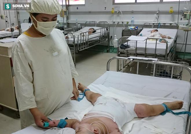 Mẹ quay đi, con ngã ngay vào nồi nước sôi: BS khuyến cáo 10 điều phòng, xử lý trẻ bị bỏng - Ảnh 2.
