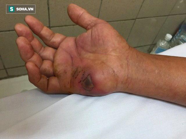 Đã đến mùa rắn độc: BS viện Bạch Mai mách các bước sơ cứu khi bị rắn cắn ai cũng cần biết - Ảnh 2.