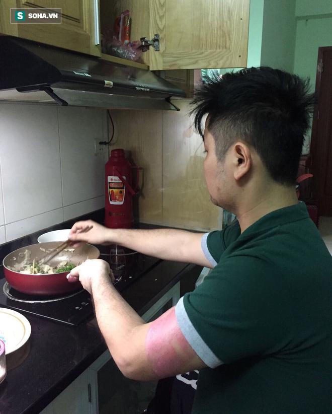 Bị cắt 2 chân, ngay khi ra viện nấu cơm cho vợ ăn: Nghị lực, tình yêu chiến thắng số phận - Ảnh 4.