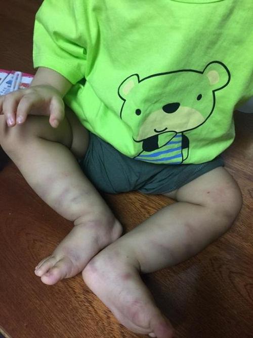 Vụ bỏ rơi bé 1 tuổi bị đánh tổn thương não: Công an giăng lưới 5 đối tượng tại bệnh viện - Ảnh 1.