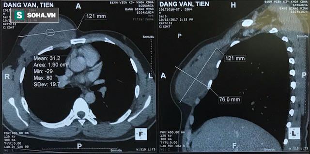 7 năm mang khối u ác tính được cứu sống kỳ diệu: Chuyên gia chỉ rõ yếu tố nguy cơ mắc bệnh - Ảnh 1.