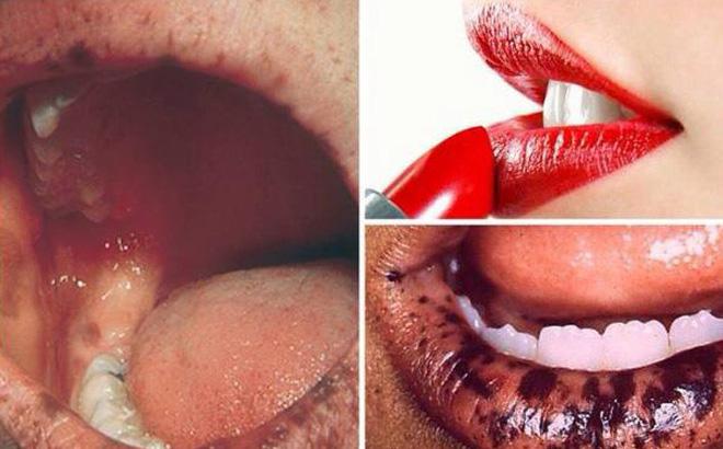 PGĐ BV Da liễu: Có cô gái trẻ, xinh xắn, bỏ khẩu trang ra môi thâm đen vì dùng son nhiễm chì! - Ảnh 1.