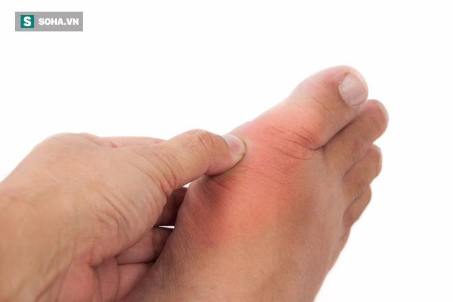 Một dấu hiệu ở ngón chân cái tiết lộ tình trạng bất lực ở nam giới - Ảnh 1.