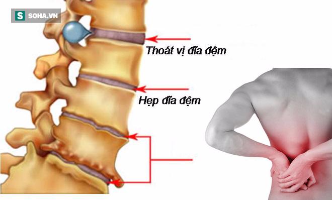Nếu biết những lời khuyên này sớm, bạn sẽ bớt lo phải chữa bệnh đau lưng sau này - Ảnh 2.