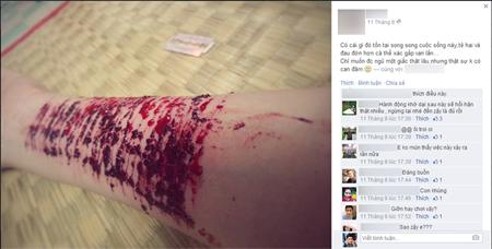 Không thực hiện được ước mơ du học, cô gái tự dùng dao rạch 16 nhát trên tay - Ảnh 2.