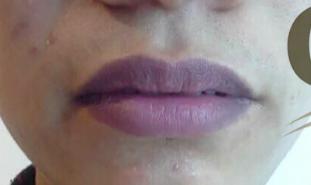 Đôi môi là cửa sổ của sức khỏe: Hãy xem môi bạn cảnh báo bệnh gì để khắc phục sớm - Ảnh 5.