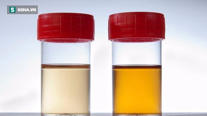 """Xem màu nước tiểu: Cách tự """"khám"""" ra bệnh quý ông nào cũng nên biết sớm - Ảnh 4."""