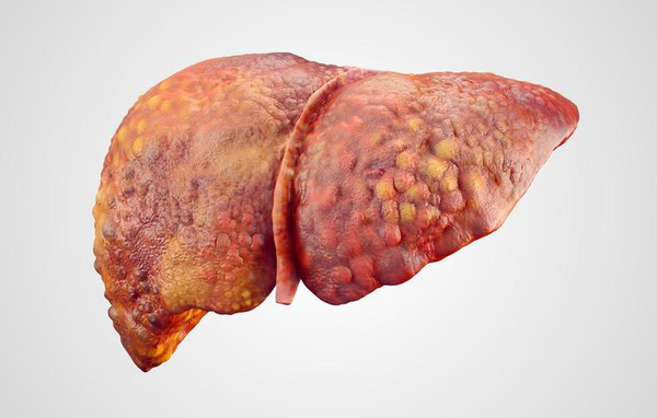 Nếu không biết 4 điều này, có thể bạn sẽ không biết cách bảo vệ gan của mình - Ảnh 1.