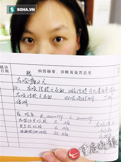 Cô gái bị sỏi mắt mọc chi chít phải nhập viện cấp cứu chỉ vì thói quen nhiều người mắc - Ảnh 1.