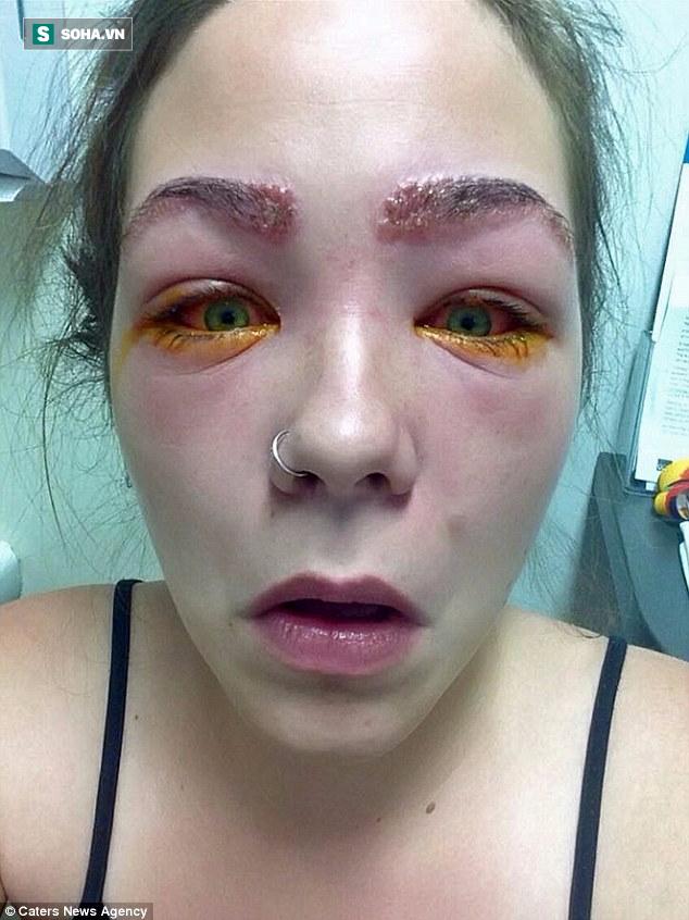 Cảnh báo: Làm đẹp lông mày và lông mi với thuốc nhuộm, cô gái trẻ suýt mù cả hai mắt - Ảnh 2.