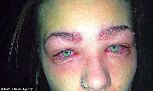 Cảnh báo: Làm đẹp lông mày và lông mi với thuốc nhuộm, cô gái trẻ suýt mù cả hai mắt - Ảnh 3.