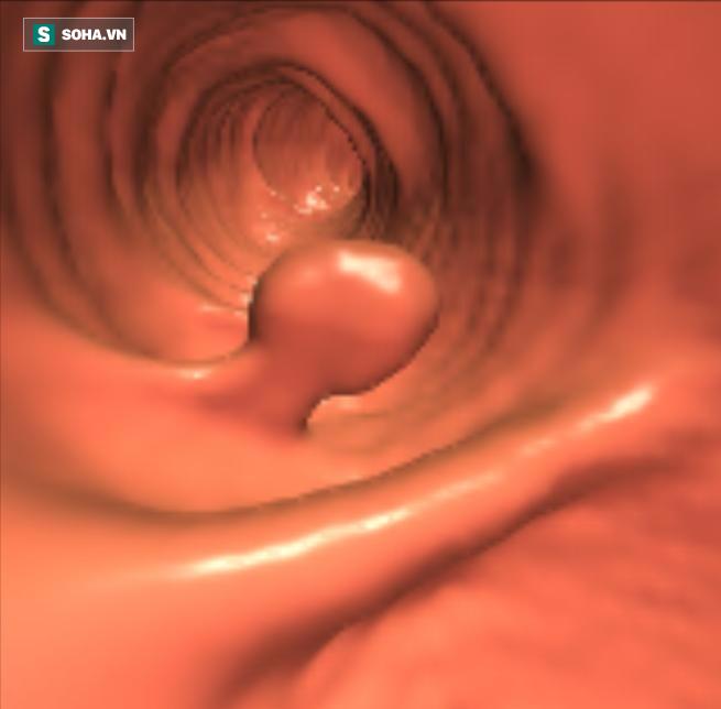 3 dấu hiệu của polyp đại trực tràng: Nguy cơ phát sinh ung thư nếu không điều trị sớm - Ảnh 1.