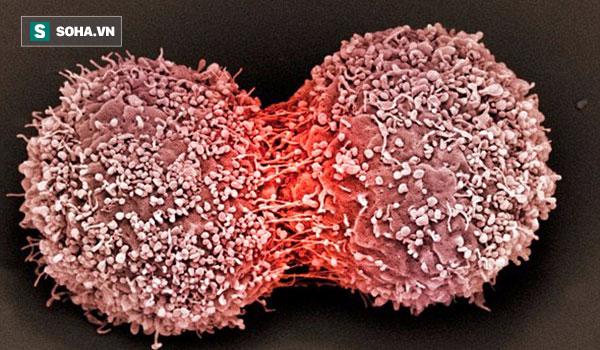 Ai cũng có tế bào ung thư trong cơ thể: 3 nguyên tắc vàng chặn đứng sự hình thành khối u - Ảnh 1.