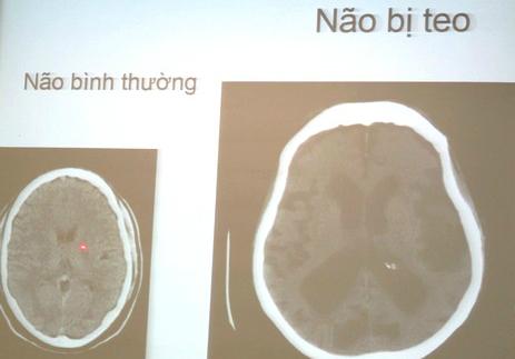 Báo động nhiều người mắc ung thư, teo não vì uống rượu - Ảnh 1.