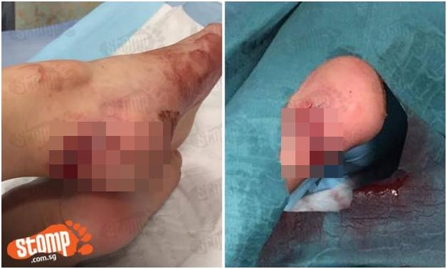 Kẹt thang cuốn, bé gái 2 tuổi bị cứa rách gót chân - Ảnh 1.