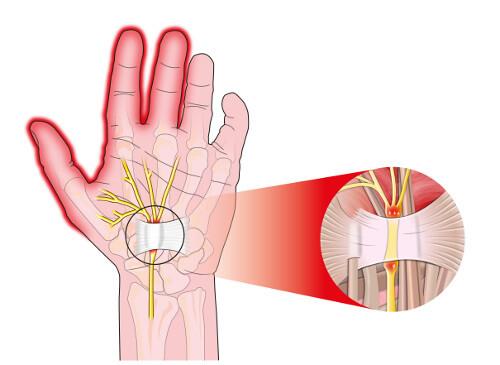 Triệu chứng tê bại ở tay không hẳn do thiếu canxi mà có thể xuất phát từ 10 nguyên nhân không ngờ - Ảnh 1.