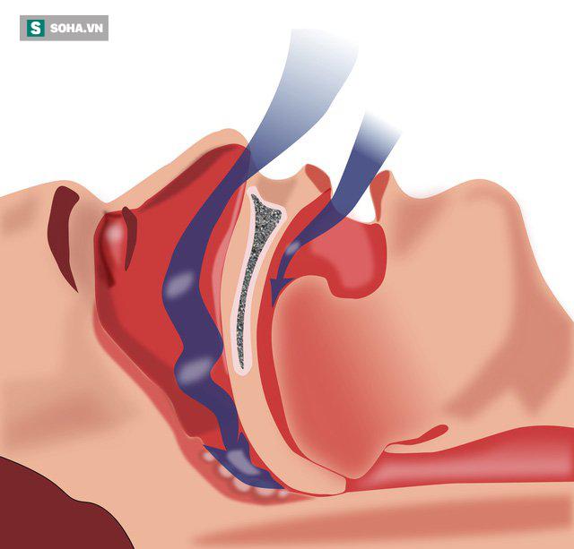 Chuyên gia cảnh báo người ngủ ngáy: Nếu có biểu hiện sau rất nguy hiểm, chớ coi thường - Ảnh 2.