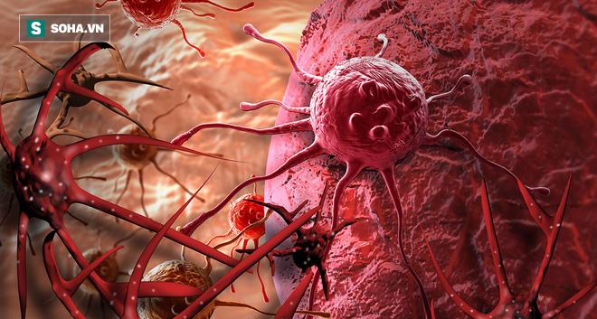 Bác sĩ bệnh viện Việt Đức khuyên 6 điều nên làm ngay để bệnh ung thư không gõ cửa - Ảnh 1.