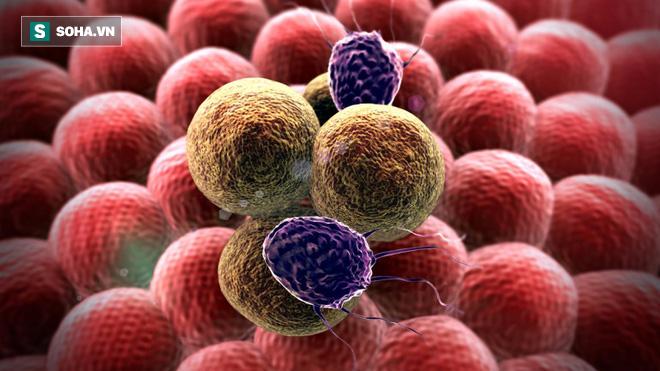 Nguyên GĐ Bệnh viện K chia sẻ 5 điều thực hiện đủ sẽ phòng được 80% bệnh ung thư - Ảnh 1.