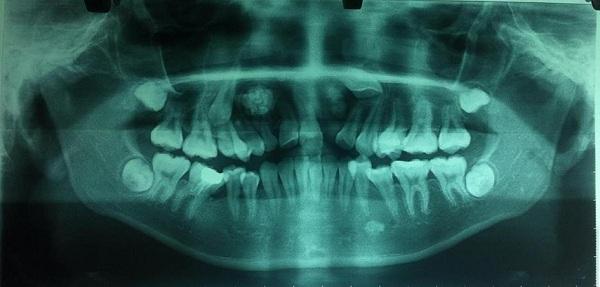 14 tuổi vẫn còn răng sữa, đi khám phát hiện u răng với hàng chục chiếc răng nhỏ - Ảnh 1.