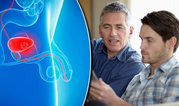 5 yếu tố nguy cơ mắc ung thư bàng quang - Ảnh 1.