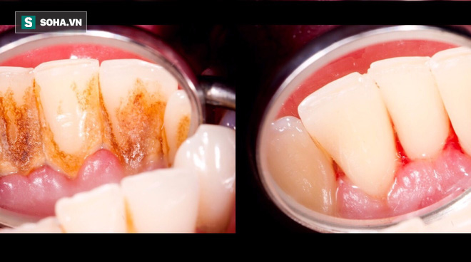 Đừng để bệnh răng miệng tăng nguy cơ ung thư: 4 cách đánh bật cao răng tại nhà - Ảnh 1.