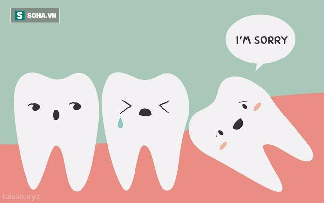 Vì sao hay mọc ngu lung tung mà chúng vẫn có tên là răng khôn? - Ảnh 1.