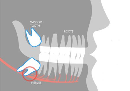 Vì sao hay mọc ngu lung tung mà chúng vẫn có tên là răng khôn? - Ảnh 3.