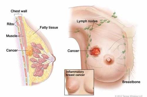 Thiếu nữ 20 tuổi chết điếng khi nhận tin bị ung thư vú - Ảnh 1.