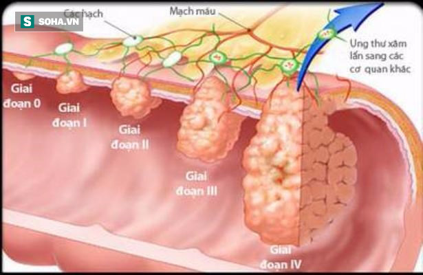 Bí mật của chế độ ăn giảm được 86% nguy cơ ung thư đại trực tràng: Có thể có ích cho bạn - Ảnh 1.