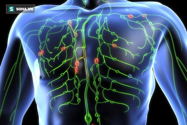 Tiến sĩ Mỹ hướng dẫn 5 bước làm sạch hệ bạch huyết, ngừa mọi bệnh tật - Ảnh 1.