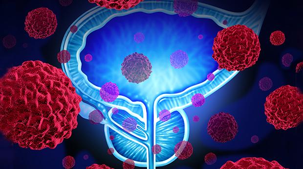 TS nổi tiếng Mỹ: Chiến binh chống ung thư mạnh hơn nước trà xanh nên dùng hàng ngày - Ảnh 2.