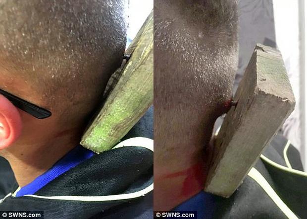 Cậu bé tự kỷ 9 tuổi bị bắt nạt, ném tấm ván có đinh vào đầu - Ảnh 1.