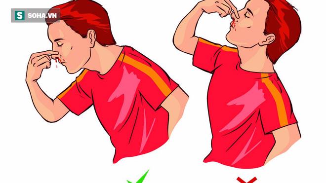 Chảy máu cam vẫn thường xảy ra, nhưng nếu là 1 trong 8 trường hợp sau cần đi khám ngay - Ảnh 3.