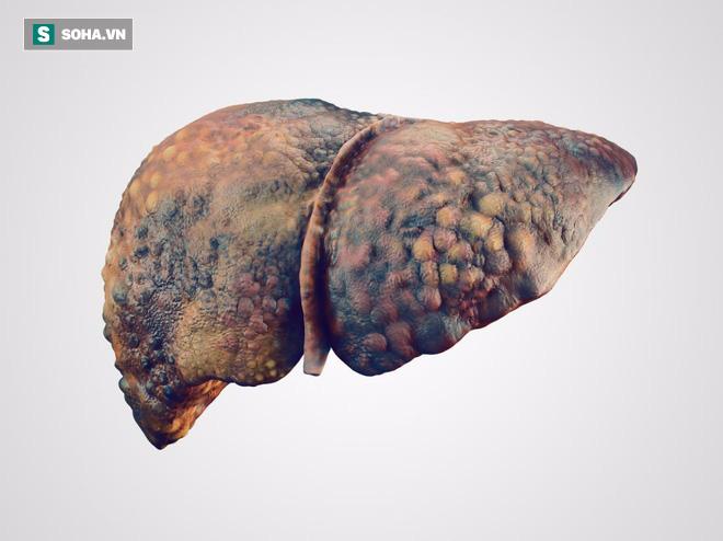 Đau bụng dữ dội có thể là dấu hiệu của căn bệnh nguy hiểm ở bộ phận quan trọng nhất này! - Ảnh 3.