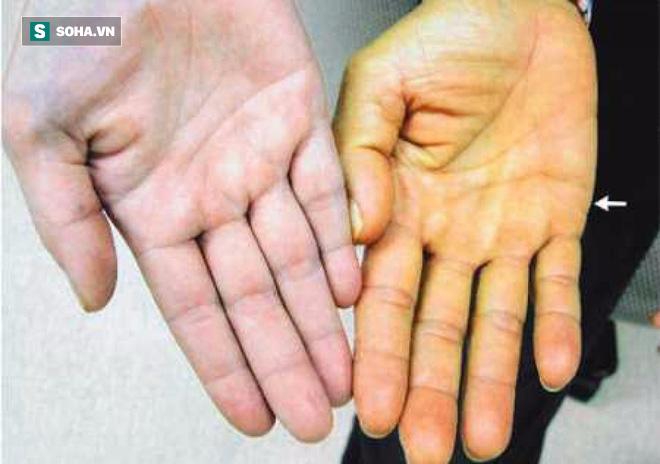 Đau bụng dữ dội có thể là dấu hiệu của căn bệnh nguy hiểm ở bộ phận quan trọng nhất này! - Ảnh 1.