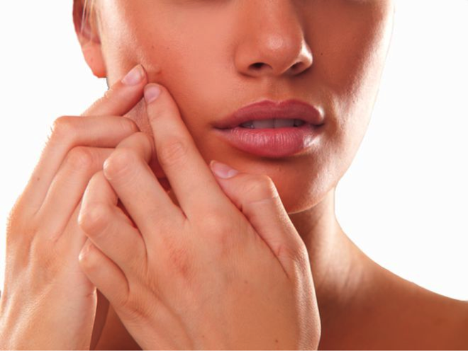 6 sai lầm khi trị mụn trứng cá khiến mụn mọc nhiều hơn và hủy hoại làn da bạn nhanh chóng - Ảnh 1.