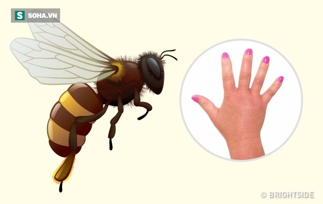 Dấu hiệu xác định chính xác loại côn trùng nào đã cắn bạn: Biết để có cách xử trí phù hợp - Ảnh 1.