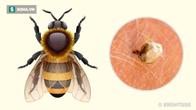 Dấu hiệu xác định chính xác loại côn trùng nào đã cắn bạn: Biết để có cách xử trí phù hợp - Ảnh 2.
