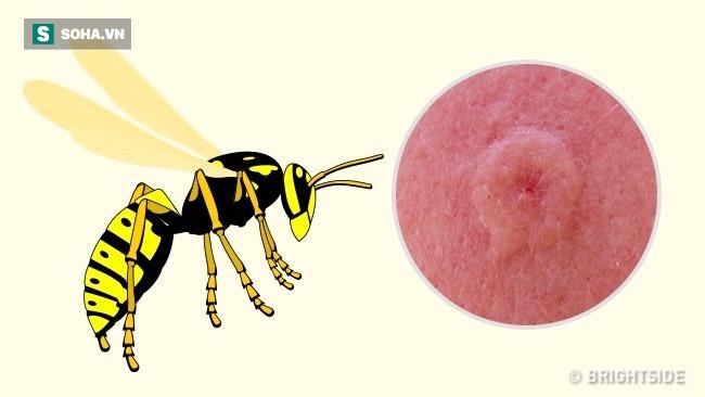 Dấu hiệu xác định chính xác loại côn trùng nào đã cắn bạn: Biết để có cách xử trí phù hợp - Ảnh 3.