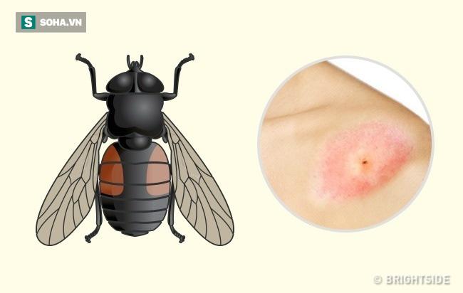 Dấu hiệu xác định chính xác loại côn trùng nào đã cắn bạn: Biết để có cách xử trí phù hợp - Ảnh 8.