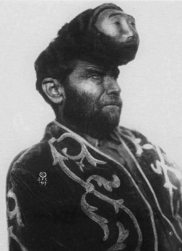 Tấm hình về người đàn ông có hai đầu rất nổi tiếng tại Mexico. Nhưng sự thật là gì? - Ảnh 1.